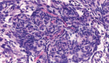 414-atypical-primary-pulmonary-meningioma-a-report-of-a-case-suspected-of-being-a-lung-metastasis