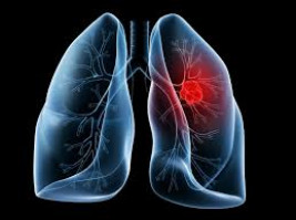 Treatment guidance for lung cancer patients during the COVID-19 pandemic