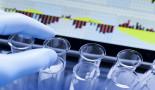 Identifican un centenar de biomarcadores útiles para predecir el cáncer colorrectal