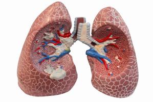 Una radiación menos agresiva contra el cáncer de pulmón