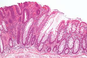 Molecular basis underlying colorectal cancer revealed
