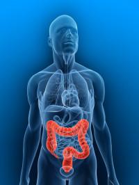 Cinco claves para evitar el cáncer de colon