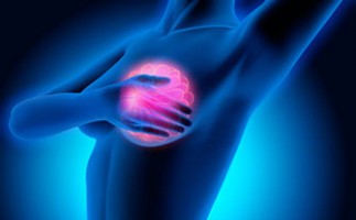 Study finds global trends in women's breast cancer show cause for concern