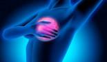 El riesgo de un segundo cáncer de mama se puede cuantificar mejor en mujeres portadoras de una mutación BRCA