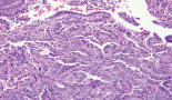 613-utility-of-endometrial-sampling-prior-to-risk-reducing-hysterectomy-in-a-patient-with-lynch-syndrome