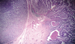616-collision-tumour-of-large-cell-neuroendocrine-carcinoma-and-adenocarcinoma-in-the-stomach-a-case-report