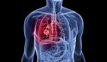 ASCO 2018: Immunotherapy pembrolizumab works better than chemotherapy alone as initial treatment for most advanced lung cancers