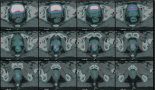629-pet-ct-with-fluorodeoxyglucose-during-neoadjuvant-chemoradiotherapy-in-locally-advanced-rectal-cancer