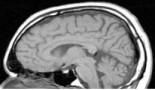 La cirugía extensiva es la mejor opción para un cáncer cerebral agresivo, según un estudio