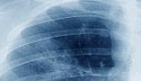 ¿Demasiados pacientes de cáncer de pulmón no aprovechan la cirugía?