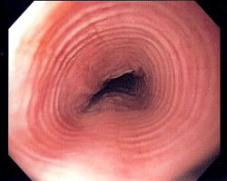 Oesophageal cancer patients show abundance of oral pathogens