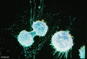 AACR 2018: Cancer cells actively fuel growth and metastasis by reprogramming healthy cells