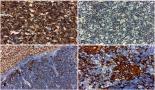 693-hepatic-metastasis-of-thymoma-case-report-and-immunohistochemical-study