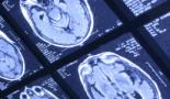 El tumor cerebral agresivo se ha mapeado con detalles genéticos y moleculares
