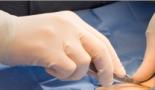 Europa recomienda aprobar el dicloruro de radio 223 (Bayer) para el cáncer de próstata resistente a castración