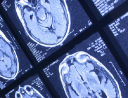 Structures discovered in brain cancer patients can help fight tumours