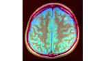 705-central-nervous-system-metastasis-secondary-to-colorectal-cancer-a-retrospective-cohort-study-of-20-cases