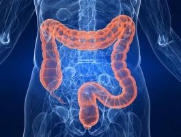 Los riesgos de enfermedad cardiaca también podrían aumentar el riesgo de cáncer de colon de las mujeres
