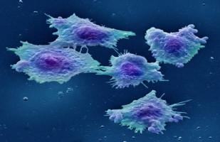 Aumenta el riesgo de cáncer de colon entre los miembros de la generación X y la generación del milenio