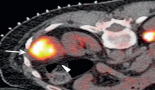 733-unusual-tumour-ablations-report-of-difficult-and-interesting-cases
