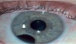 734-brachytherapy-and-anterior-segment-imaging-in-iris-melanoma