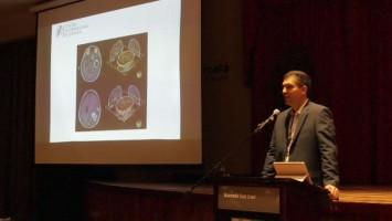 Manejo avanzado de metástasis cerebral en cáncer de mama ( Dr Eduardo Lovo - Centro Internacional de Cáncer, El Salvador )