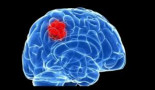 How 'paralysed' immune cells can be reactivated against brain tumours