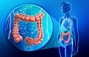 Turning colon cancer cells around