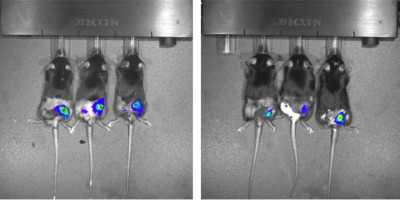 A library of mice to look up the best liver cancer treatment