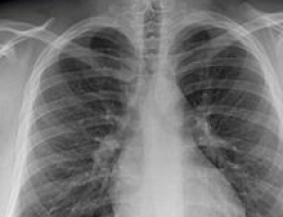 """Pathway navigator """"critical"""" to cutting lung cancer waiting times say experts"""