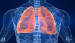 La radioterapia y la quimioterapia juntas mejoran la supervivencia del cáncer de pulmón