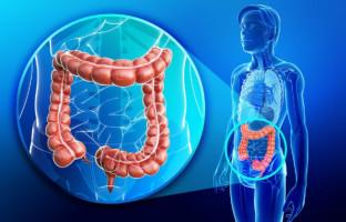 ¿Las pruebas del cáncer de colon deberían empezar a los 45 años, no a los 50?