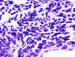 Researchers discover a novel class of drugs that may help treat a deadly type of lymphoma