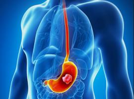 ¿Algunos antiácidos se vinculan con el cáncer de estómago?