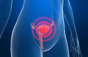 Cinco cosas que debe saber sobre el cáncer de cuello uterino