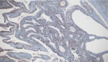 803-endometriosis-and-endometriosis-associated-cancers-new-insights-into-the-molecular-mechanisms-of-ovarian-cancer-development