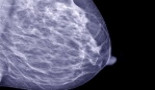 807-informd-a-new-initiative-to-raise-public-awareness-about-breast-density