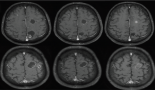 818-cystic-brain-metastases-in-alk-rearranged-non-small-cell-lung-cancer