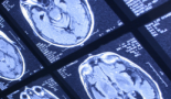 Se prueba por primera vez una vacuna contra una proteína mutada en pacientes con tumores cerebrales