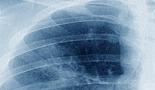 Prueba preventiva reduce mortalidad por cáncer de pulmón