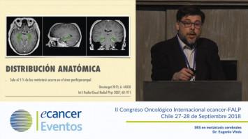 SRS en metástasis cerebrales ( Dr. Eugenio Vinés - Pontificia Universidad Católica de Chile, Santiago, Chile. )