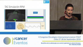 Beneficios de la radioterapia con control respiratorio en cáncer de mama ( Dra. Valentina Ovalle - Clínica IRAM - Universidad Diego Portales, Santiago, Chile. )