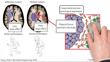 How does solid stress from brain tumours damage healthy tissue? (  )