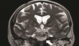 907-petroclival-meningiomas-radiological-features-essential-for-surgeons