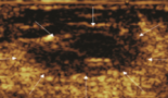 908-laser-thermal-ablation-to-treat-a-recurrent-soft-tissue-sarcoma-of-the-leg-a-case-report