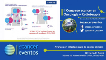 Avances en el tratamiento del cáncer gástrico. ( Dr. Geraldo Alves, Hospital Sta. Rosa HSR, Mato Grosso, Brasil )