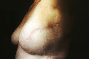 Nationwide study finds breast cancer patients unaware of surgical options