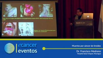Muertes por cáncer de tiroides. ( Dr. Francisco Medrano - Hospital Salud Integral, Nicaragua )