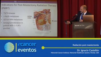 Radiación post-mastectomía. ( Dr. Ignacio Castellón - Memorial Healthcare System, Hollywood, FL, USA )