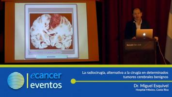 La radiocirugía, alternativa a la cirugía en determinados tumores cerebrales benignos. ( Dr. Miguel Esquivel - Hospital México, Costa Rica )